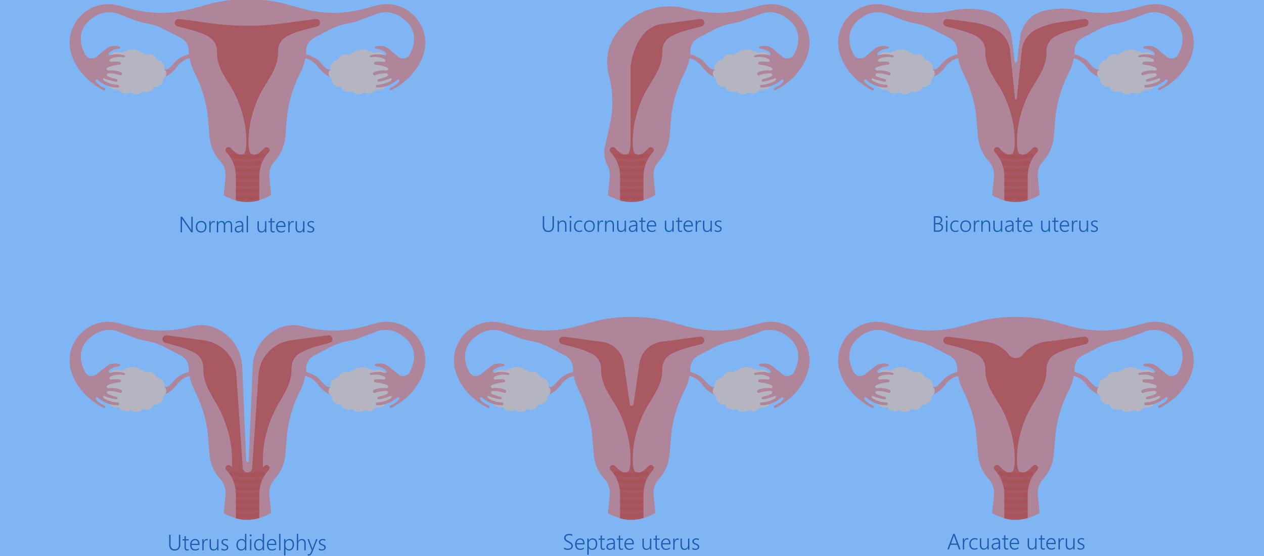 Uterine Abnormalities
